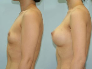 口述西之米三维双C动感隆胸术的成功案例