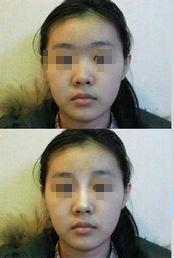 口述3D无痕隆鼻的真实案例