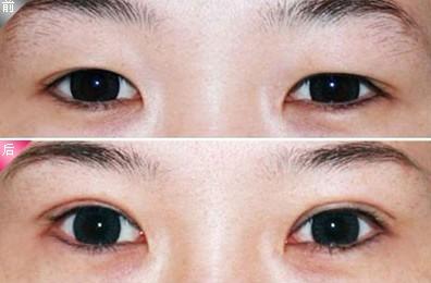 网友口述芳艺双眼皮手术的成功案例