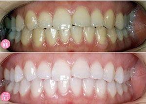 口述牙齒美白的真實案例