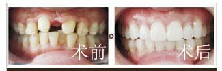 口述美基元種植牙成功案例
