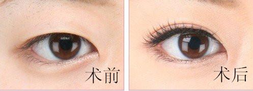 口述美基元韓式翹睫雙眼皮成功案例