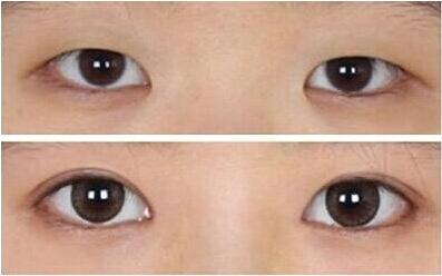 B2韓式無痕雙眼皮成功案例