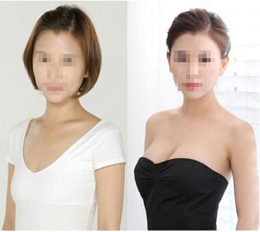 內鏡極速恢復隆胸成功案例