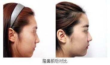 口述亚单位精细综合美鼻的成功案例