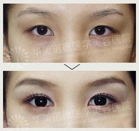 口述华美LORD双眼皮手术的成功案例