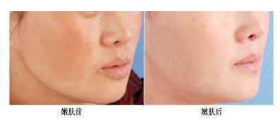 口述王者超级治疗平台美肤系统成功案例