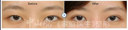 3.5°炫彩雙眼皮成功案例