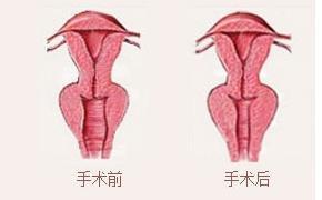 口述Touch阴道回春术的真实案例
