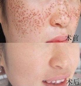 口述净肤镭射祛斑的真实案例