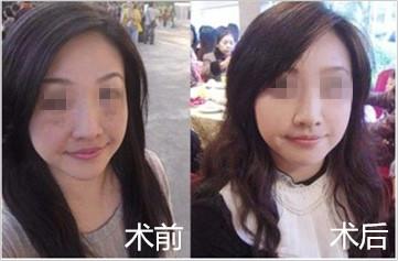 网友体验智能3D彩光瓷肌祛斑的成功案例