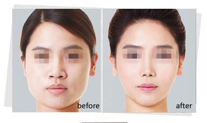 网友体验韩国正统改脸型的成功案例