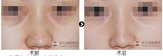 瑞麗微骨鼻雕成形術真人案例