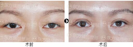 TAT雙眼皮真人案例