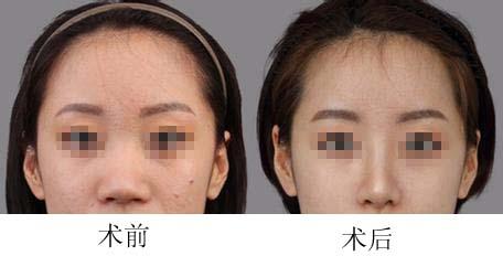 口述综合隆鼻术的真实案例
