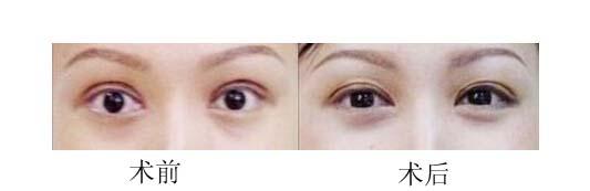 口述双眼皮修复术的真实案例