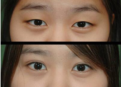 面部轮廓手术双眼皮手术成功案例