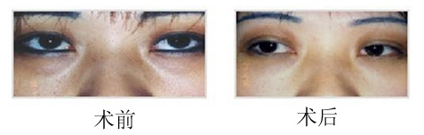 洗眼线成功案例