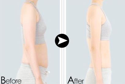 聚能多维溶脂减肥的真实案例