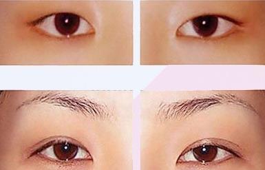 双眼皮手术成形术的真实案例