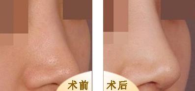隆鼻手术的真实案例