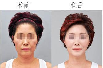 口述面部四维定格术的真实案例