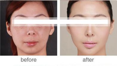口述光学深层祛斑嫩肤术的真实案例