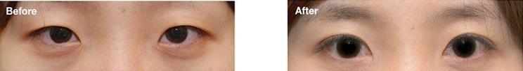 自然微调双眼皮2.0的真实案例