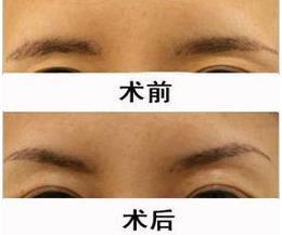 美颜眉部整形的真实案例