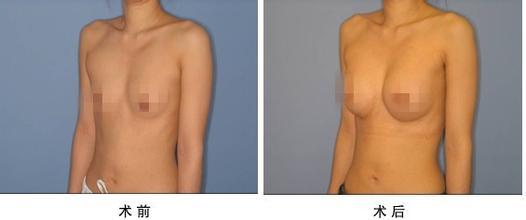 口述自体脂肪隆胸的真实案例