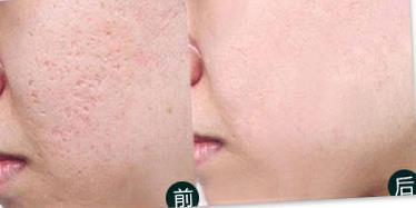 韩国祛痘净肤的真实案例