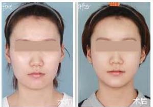 360°完美V型脸重塑的真实案例