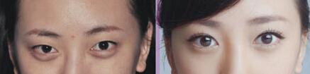 翘睫美瞳术成功案例