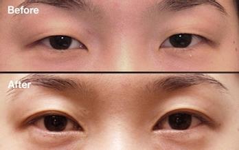 現代雙眼皮的真實案例