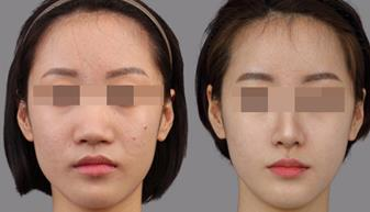 隆鼻术的真实案例