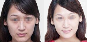 皮肤美白治疗的真实案例