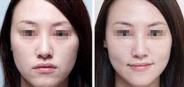 面部除皱的真实案例