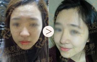 弘美开运鼻根术的成功案例