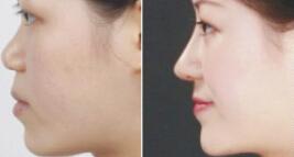 韩式明星鼻成功案例