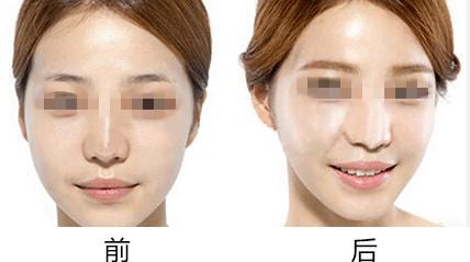 韩式半永久3D雕眉的成功案例