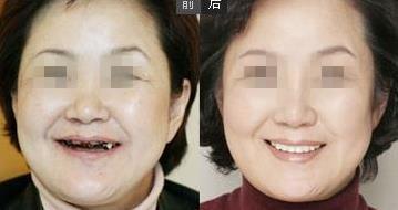 微创仿生无痛种植牙的成功案例