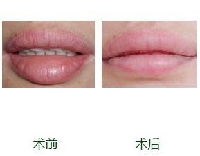 厚唇變薄手術的成功案例