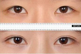 阳光眼部综合整形成功案例