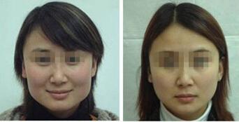3D新术式面阔改脸型成功案例