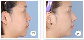 四維立體隆鼻術成功案例