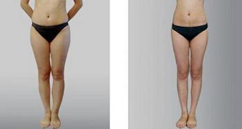 中醫針灸減肥成功案例