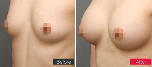 铂生胸部脂肪移植术的成功案例