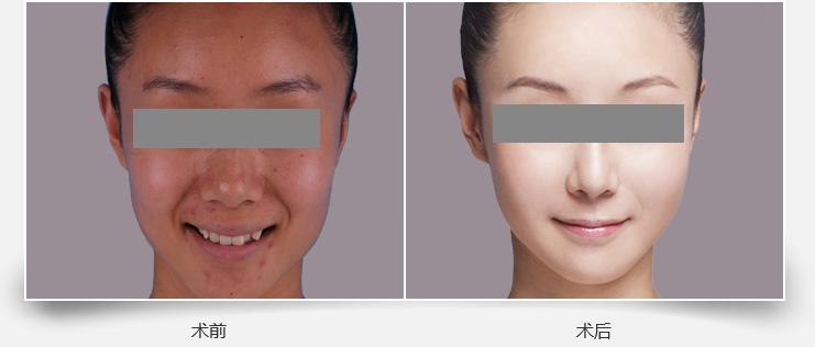 玻尿酸注射皮肤美白的成功案例
