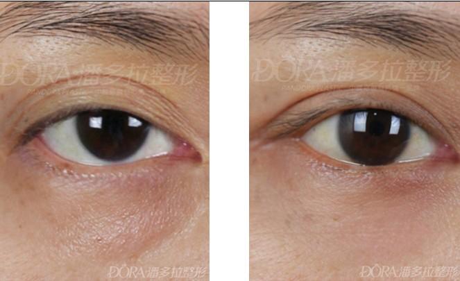 双眼皮失败修复的成功案例