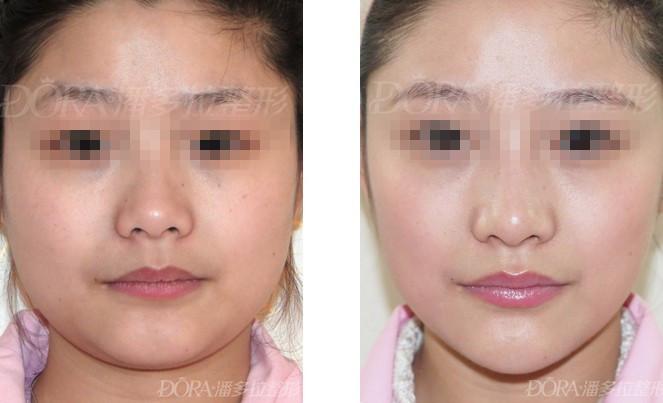 鼻整形失败修复的成功案例